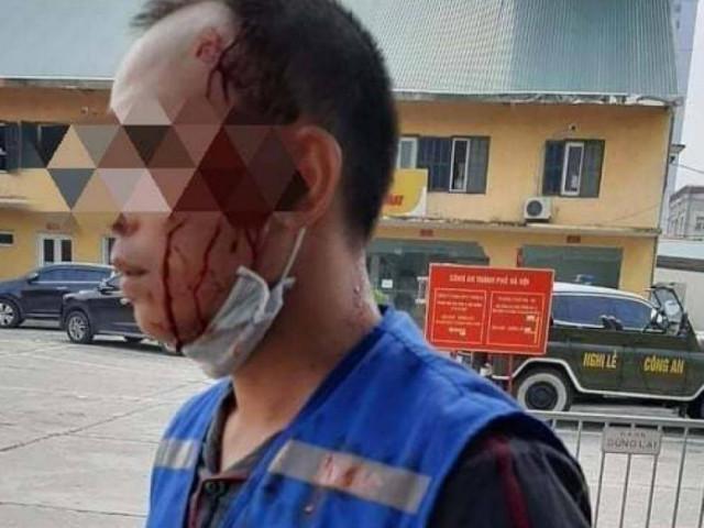 Tranh giành ép biển số ô tô, người đàn ông bị đâm nhiều nhát vào đầu, ngực