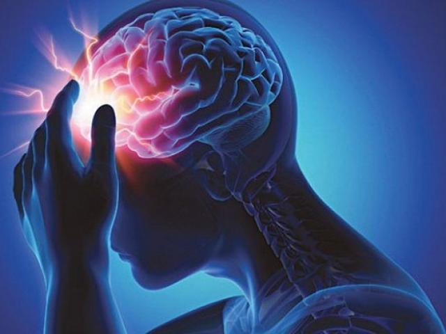 4 thói quen tai hại khiến tai biến mạch máu não ngày càng phổ biến ở người trẻ tuổi