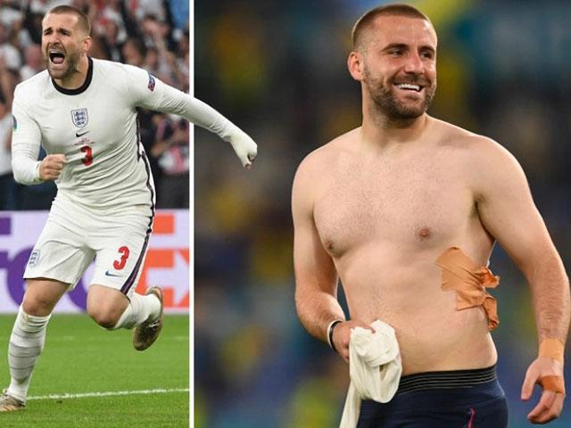 """Sốc: Luke Shaw bị gãy xương vẫn nén đau đá 3 trận ở EURO, MU """"tái mặt"""""""