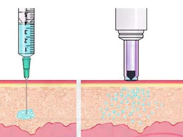 Ấn Độ phê duyệt vắc-xin ngừa COVID-19 không dùng kim tiêm